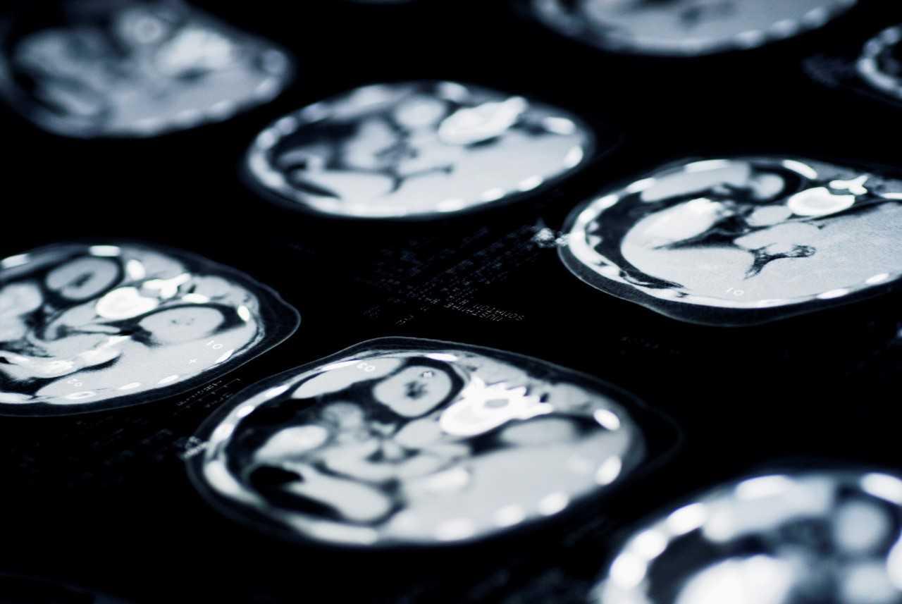太空飞行对航天员的影响:大脑容积缩水