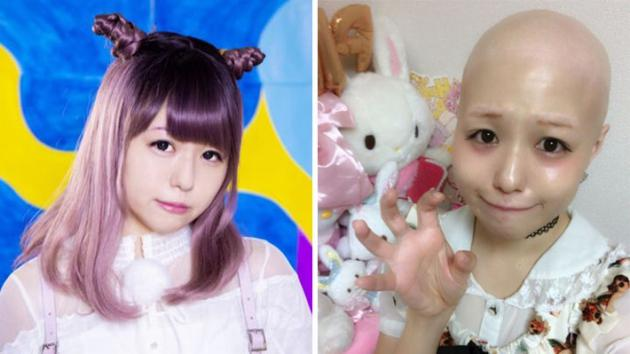 15岁女星患怪病:全身毛发快速脱落 光头示人