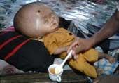 孟加拉2岁男孩头大如锣(图)