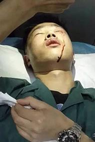 男护士劝阻轻伤者占急诊室 眼睑被打裂