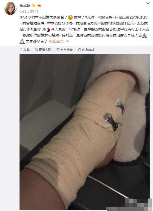 蔡卓妍录节目意外摔伤 脚缠绷带报平安(图)【星看点】