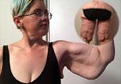 女子减重266斤皮肤如麻袋