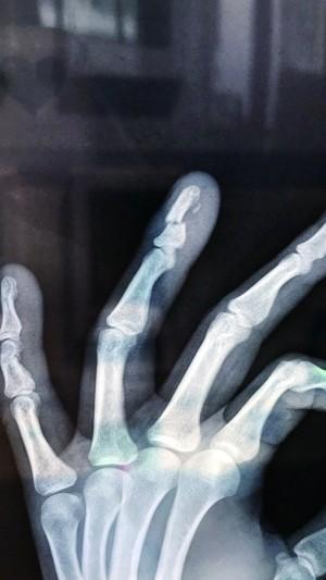 碰瓷也是拼了 作案前先用铁锤敲断手指