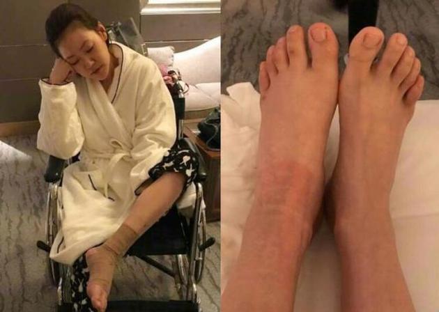 又被家暴了?小S受伤坐轮椅 脚踝红肿(图)