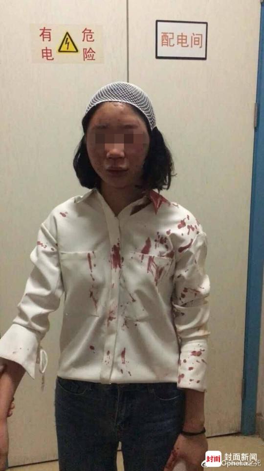 女大学生昆明旅游被打一身血:不知为啥被打(图)