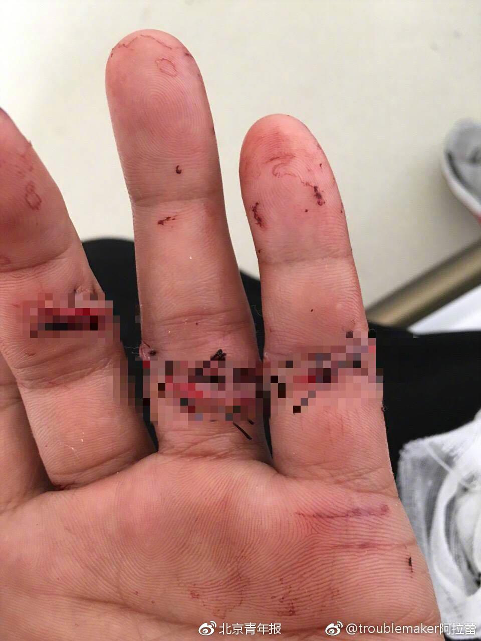 河南一宾馆洗手台掉落 致客人手指肌腱断裂