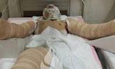 两名大学生吃火锅酒精点燃被严重烧伤