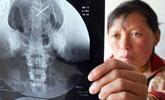 婴儿时期被刺进26根针 三十岁体检才发现