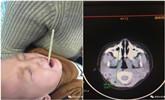 男孩吃饭时乱跑 筷子插入喉咙