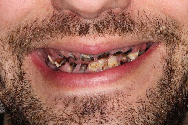 碳酸饮料当水喝 男子一口牙全烂光只能吃流食