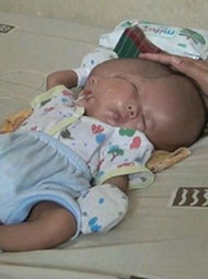 印产妇诞双脸畸胎 曾3次产检
