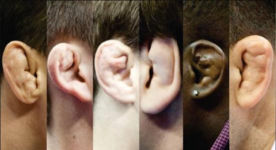 搏击百科知识:什么是饺子耳?雄性强者的象征图腾