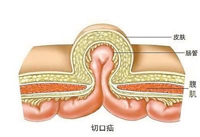 脐疝手术步骤图解