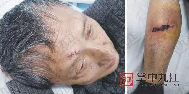 九江一外卖骑手撞伤