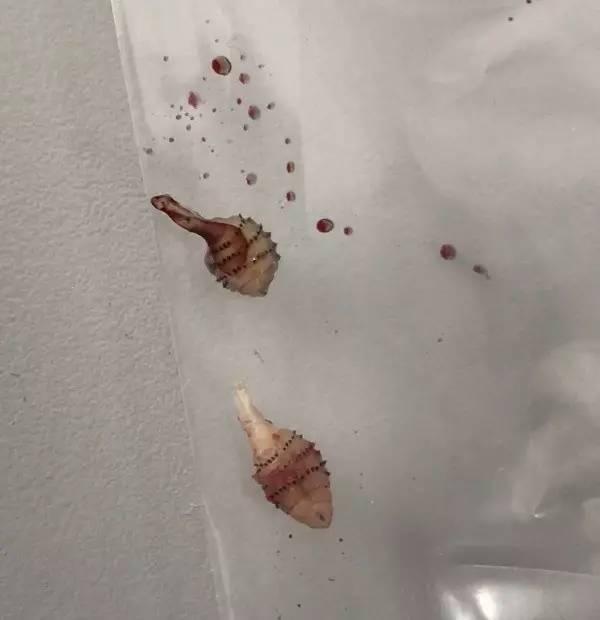 女子巴西旅游被咬,一个月后腿中竟取出两条虫!还是活的!活的! - 办公室主任 - 办公室主任的博客