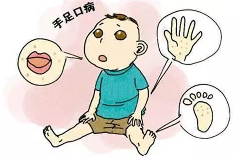 ,容易传染,要预防家长记得这样做