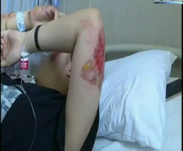 女子被撞倒在地竟被马路严重烫伤!这些你也碰不得