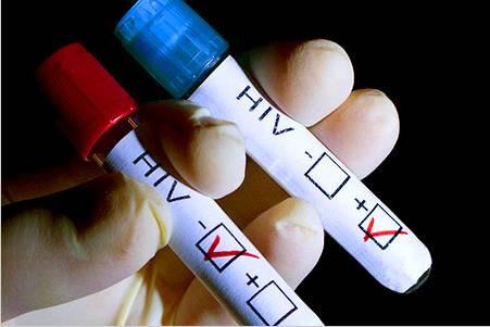 最新HIV疫苗能否攻克艾滋病
