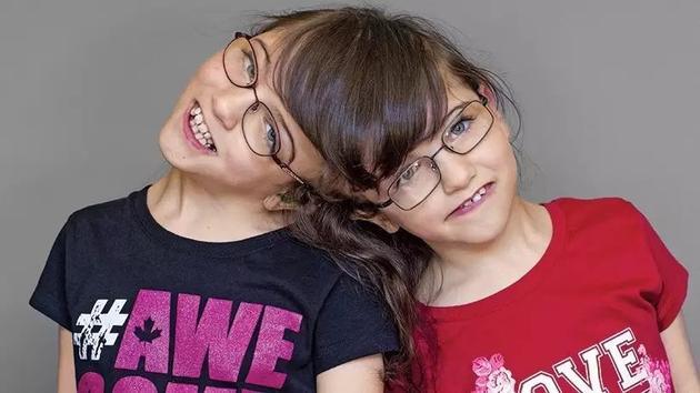 加拿大不列颠哥伦比亚省弗农镇的克莉斯塔__霍根(Krista Hogan)和塔蒂安娜__霍根(Tatiana Hogan)是一对七岁的姐妹,与其他同龄孩子与众不同的是,这对姐妹的头部是连接在一起的。