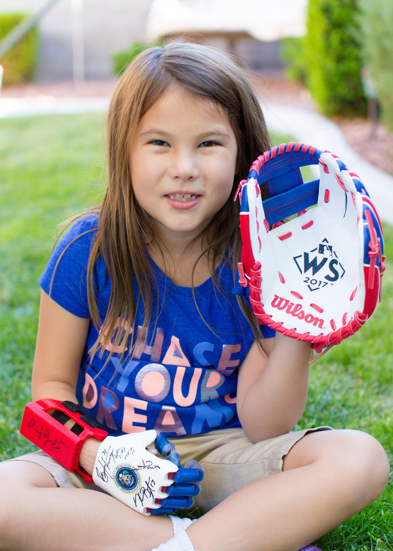 3D打印--7岁女孩用3D打印的假肢为MLB世界大赛开球,这是假肢未来的缩影?