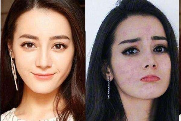 最丑女演员赵丽颖_迪丽热巴赵丽颖变丑女? 全怪无良