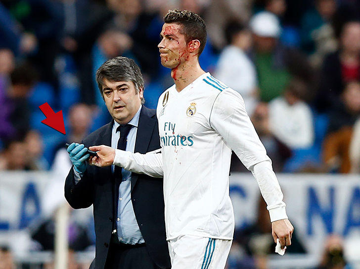 0121-ronaldo-bloody-phone-getty-4