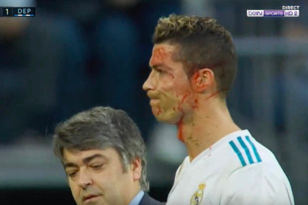 Ronaldo-took-a-kick-to-the-head-and-asked-the-physio-for-his-phone-to-see-how-bad-it-was-He-is-abso