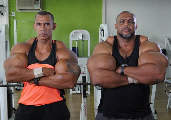 巴西两兄弟为获超大肌肉注射危险化学