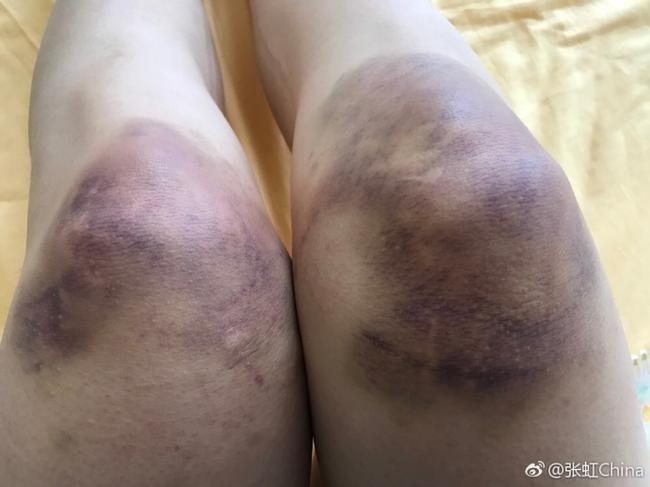 中国美女冬奥冠军仅第11 伤病严重腿里有5管积液