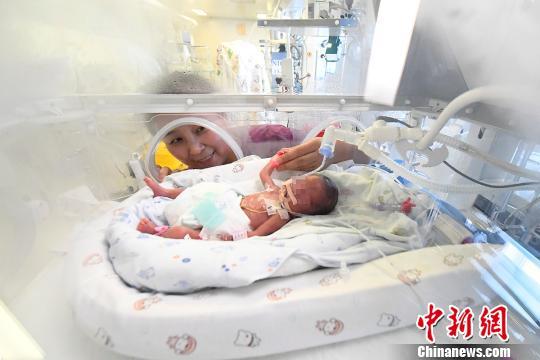 图为小涛出生10天时的照片。 韦亮摄