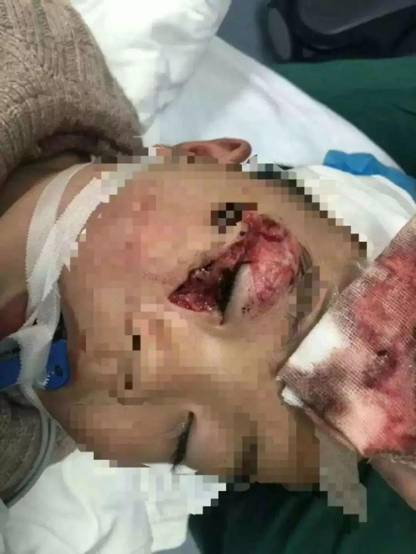 2017年12月2日 广东揭西县一名15岁少年捡到一个气球,在玩耍的时候气球突然爆炸,周边的三个人不同程度烧伤。  2017年12月 北京昌平区一对情侣被网红气球炸伤,两人面部都有一定程度的破相。 2017年11月27日 江苏南京一辆出租车上,一名男子抽烟时不小心将火星溅到网红气球上,导致气球爆炸,车上4人被炸伤。  触!目!惊!心! 真是太可怕了! 小小的气球 为什么这么危险? 氢气球爆炸 究竟会有多大的威力和伤害? 赶紧来看看消防实验! (网络配图 模拟氢气球爆炸) 消防实验:爆炸的多数是氢气球!