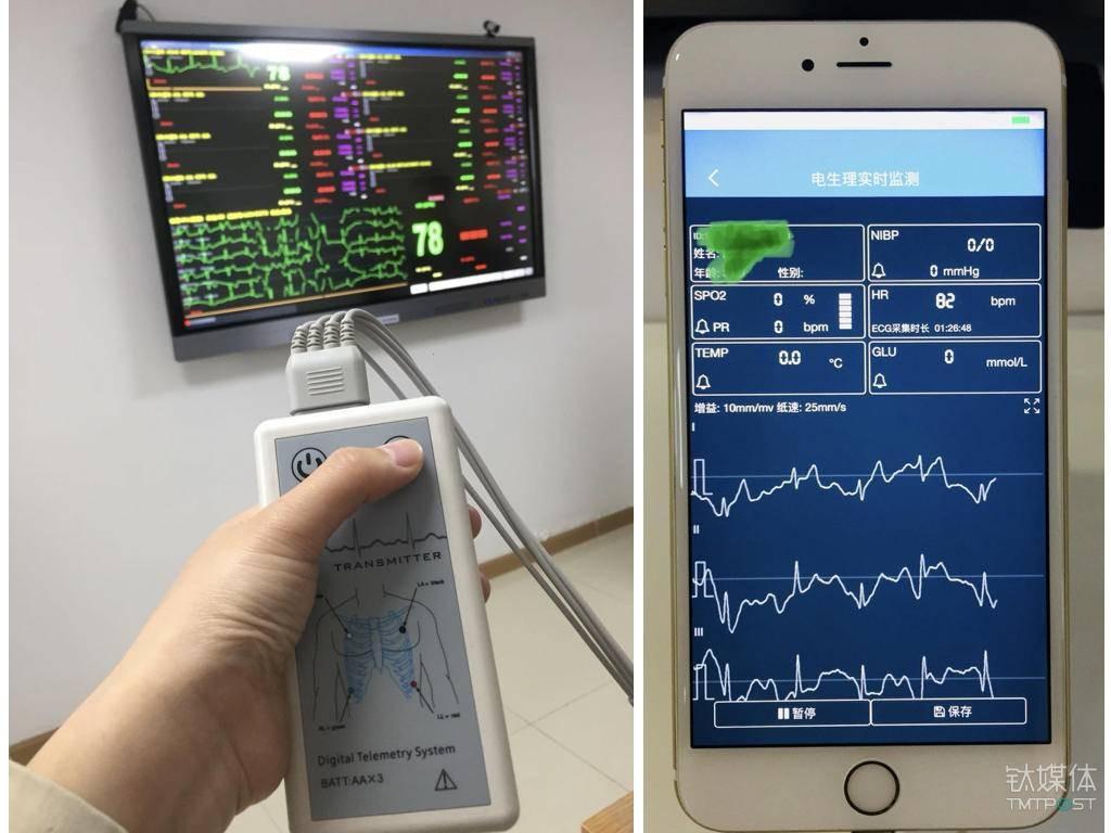 左图测心电图的仪器,可以投射到大屏幕上;右图为医生端的心电实施检测