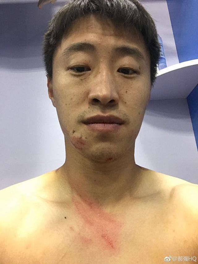 中甲外援铁钉恶意踩踏中国球员面部 在外国敢这样吗 会追罚几场?