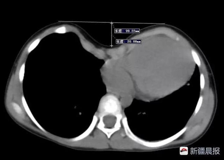 阿克陶5岁女孩患驼背胸弯腰初中微创手术后漏斗升学率长汀县图片