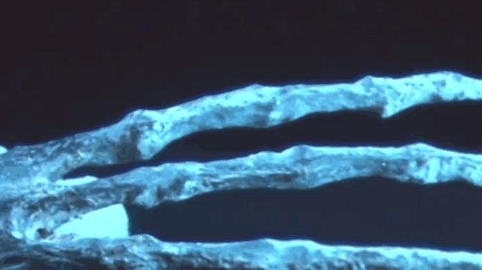 手骨解剖结构图片大全