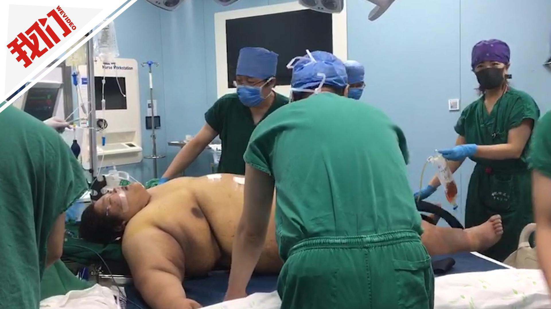 540斤瘦腿为v瘦腿做切胃希望手术一年减到20小伙针第五天图片