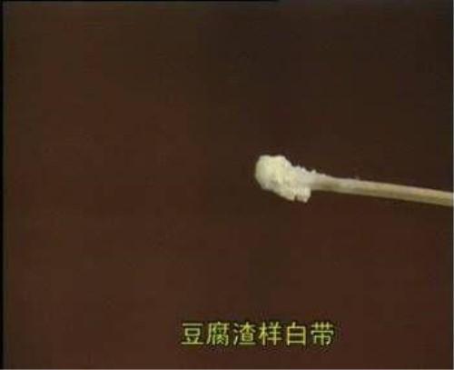 3.蛋清像豆腐渣正常的烤羊像白带一样透明,黏稠.菏泽鞑子白带腿图片