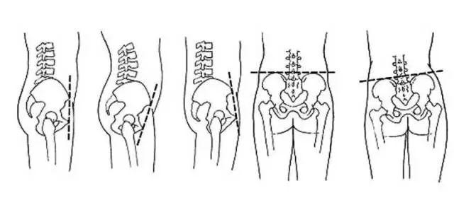 5分钟,修复骨盆,臀线翘的骨盆|女人视频矫正v骨盆性感电流图片
