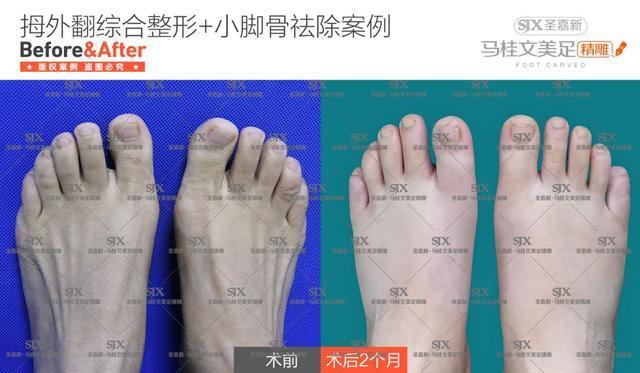 同时,这种方式祛大脚骨不是单单的矫正大脚骨,还会同时缩窄前脚掌