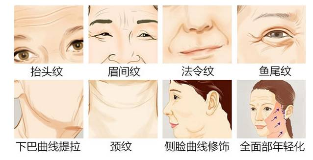 線雕可以幫助你 立體化:隆鼻、擡高鼻尖 年輕化:全面部提升 豐盈化:填充眉弓,面頰部,蘋果肌 精細化:卧蠶,唇部輪廓,唇部皺紋 輪廓化:下颌緣 個體化:緊實手臂,胸,臀,私密 國家認證:食品藥品管理局(FDA)最高安全等級認證,至尊安全。 領先同行:獨特的彈性極細針頭,配合PDO線雕提拉,塑造逆齡美肌。