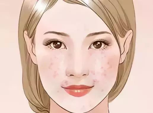 蠕形螨主要寄生在人的皮肤表面,尤其是脸部.