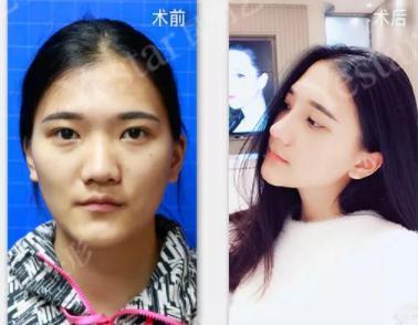 我与迪丽热巴的距离只差一个鼻子_凤凰彩票北京pk计划网