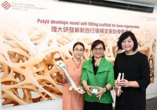 香港理大研发出骨骼支架 可自行填补骨头缺损部位