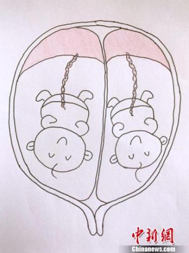 漫画图示:子宫中的双胞胎宝宝 芮妈妈 摄
