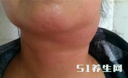 脖子上长这三样东西,要注意有可能是癌症信号!