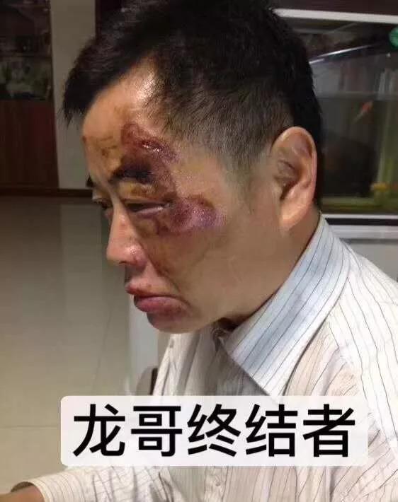 """昆山市""""8.27""""纹身宝马男被杀案系正当防卫"""