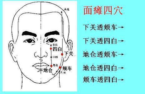 面瘫针灸治疗图