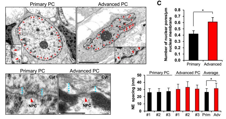 Cell丨核孔复合体与前列腺癌发生有何关系?