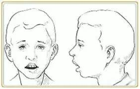 长期用嘴呼吸会影响颜值!终于知道自己为什么丑了……
