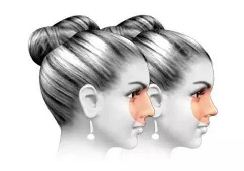 相当于戴了个美瞳: 对于亚洲人来说,鼻子的山根处一般比较塌陷,鼻头较